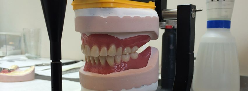 Tandlabo Dirk Van Hecke, herstelling van kunstgebitten en tandprothesen
